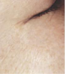 目尻のシミ3ヶ月