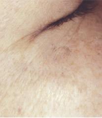 目尻のシミ2ヶ月