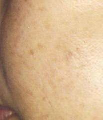 頬のシミ2ヶ月shimi_p7