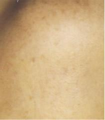 頬のシミ3ヶ月shimi_p8